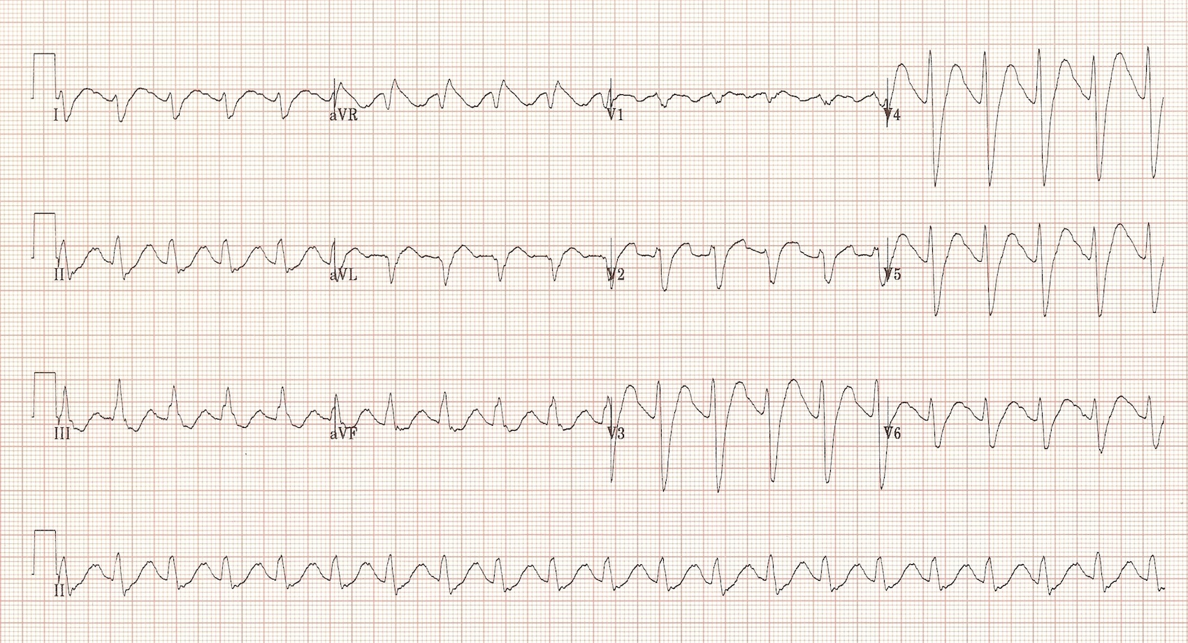 EKG with feature of a TCA overdose secondary to sodium channel blockade